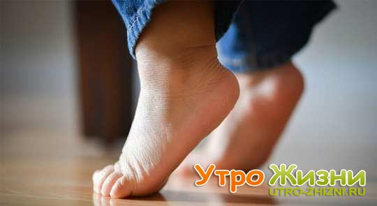 Ребенок в год ходит на носочках, причины